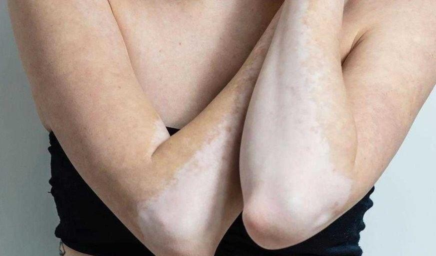 Białe plamki na skórze – jak się ich pozbyć?