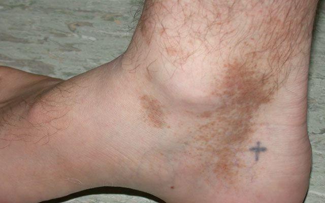 Od czego powstają brązowe plamy na skórze – objawy i zdjęcia