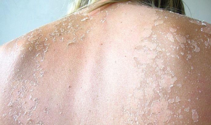 Schodząca skóra po opalaniu i plamy – co zrobić?